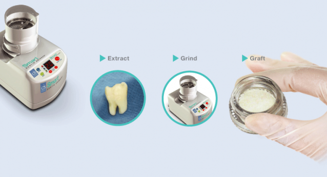 Autologous Dentin Grafting