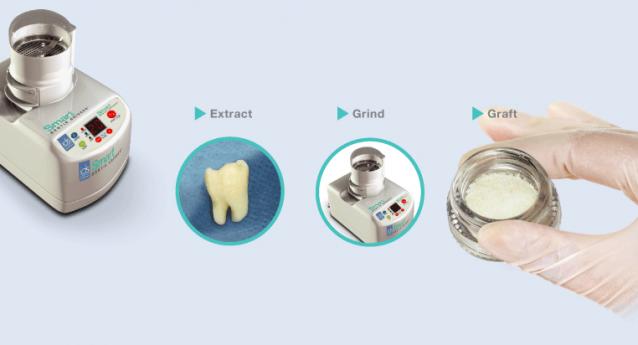 Autologous Dentin Grafting