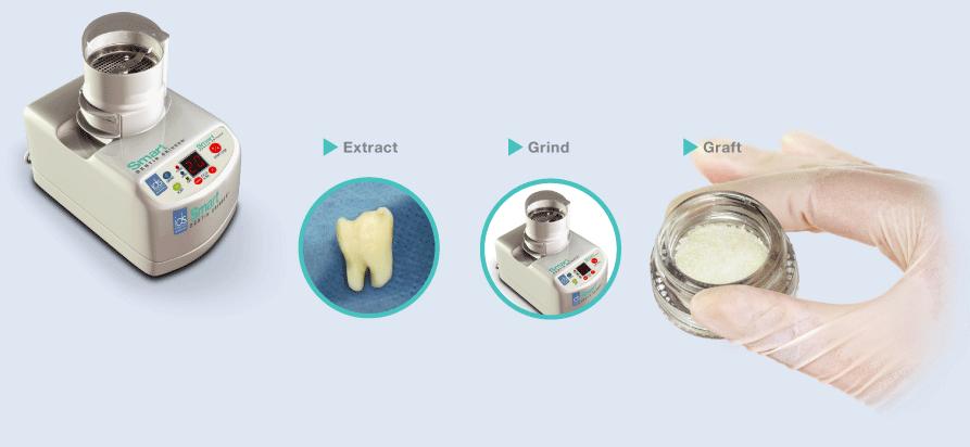 Dentin Grafting