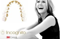 orthodontics_incognito