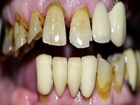 implants111