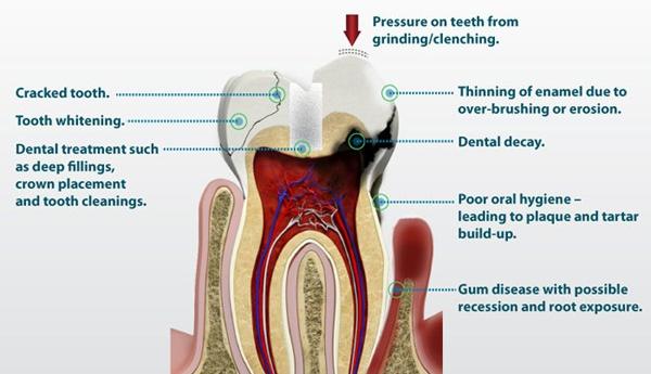 Ευαισθησία των δοντιών – Αιτίες και αντιμετώπιση